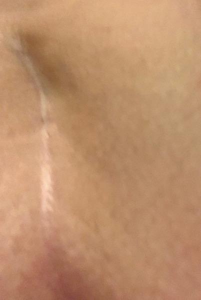 Tailbone scar/no consent surgical evidence